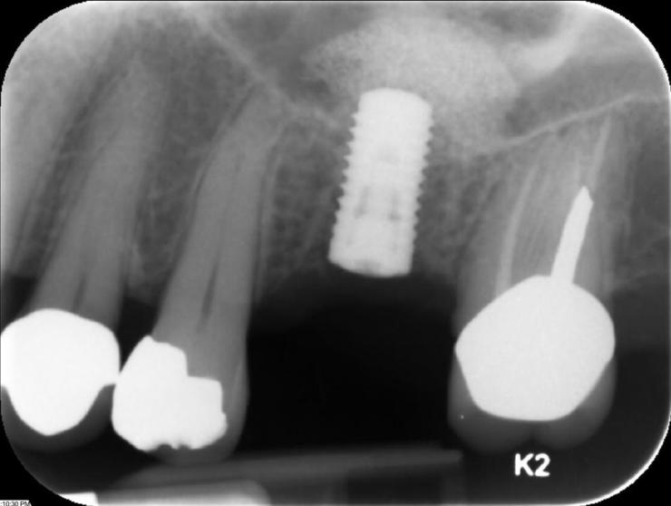 Straumann_implant_sinus-lift-2